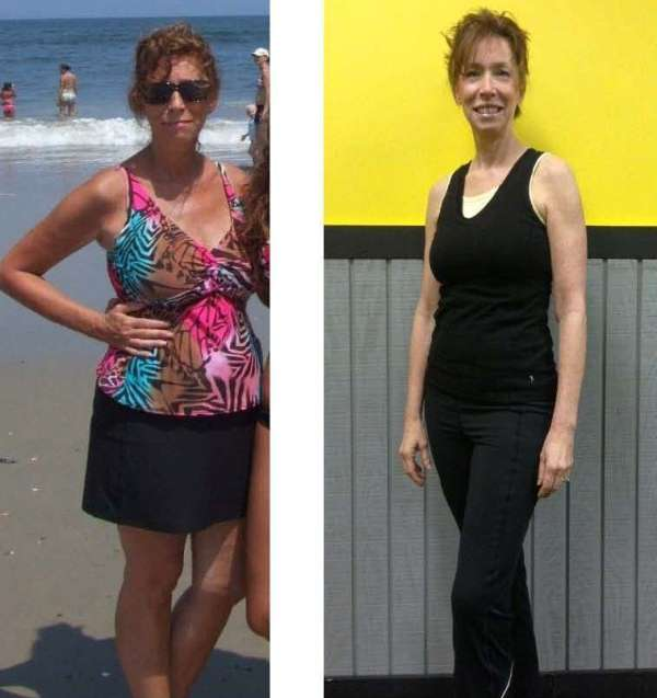MaryAnn Hartigan Before and After Pics Only